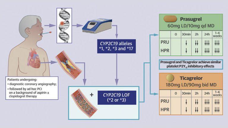 Prasugrel Versus Ticagrelor in Patients With CYP2C19 Loss-of-Function Genotypes